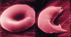 Figure 1 + 2: Cellules sanguines saines et malades